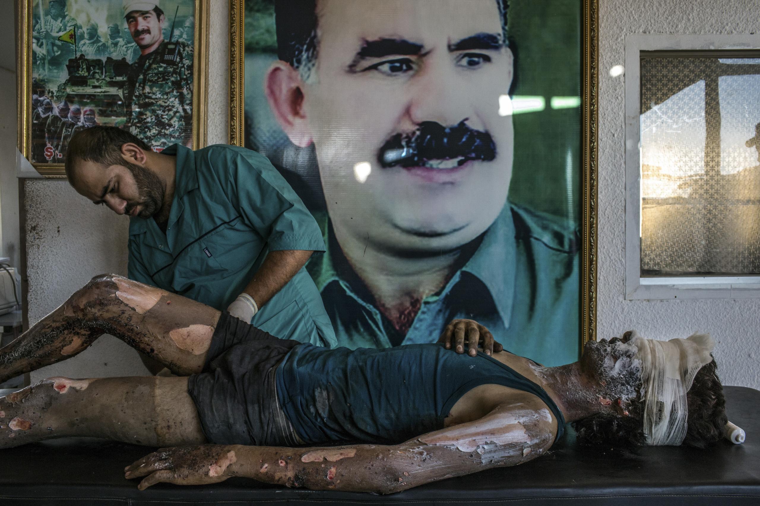 IS-Fighter-Treated-at-Kurdish-Hospital